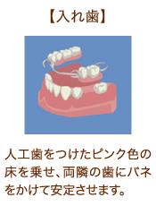 【入れ歯】人工歯をつけたピンク色の床を乗せ、両隣の歯にバネをかけて安定させます。