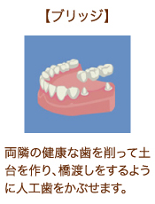 【ブリッジ】両隣の健康な歯を削って土台を作り、橋渡しをするように人工歯をかぶせます。