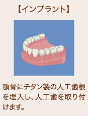 【インプラント】顎骨にチタン製の人工歯根を埋入し、人工歯を取り付けます。